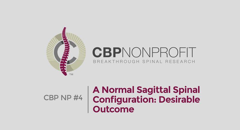 CBP NP #4: A Normal Sagittal Spinal Configuration: Desirable Outcome